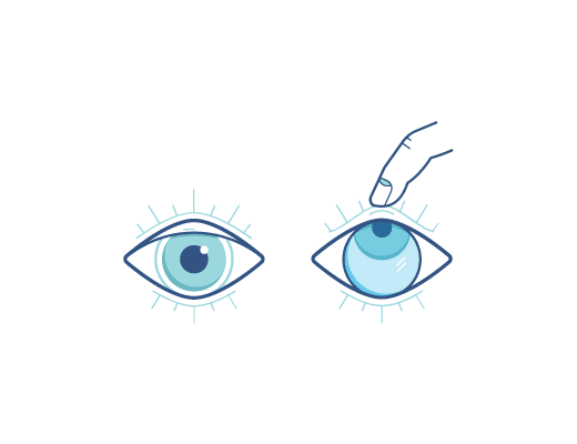 ogen open