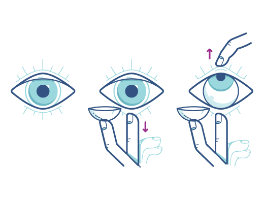 Acuvue_eyeopeningtechnique_Illustration.